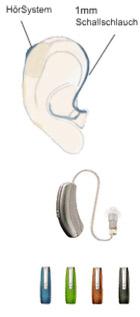Offene Hörgeräteversorgung